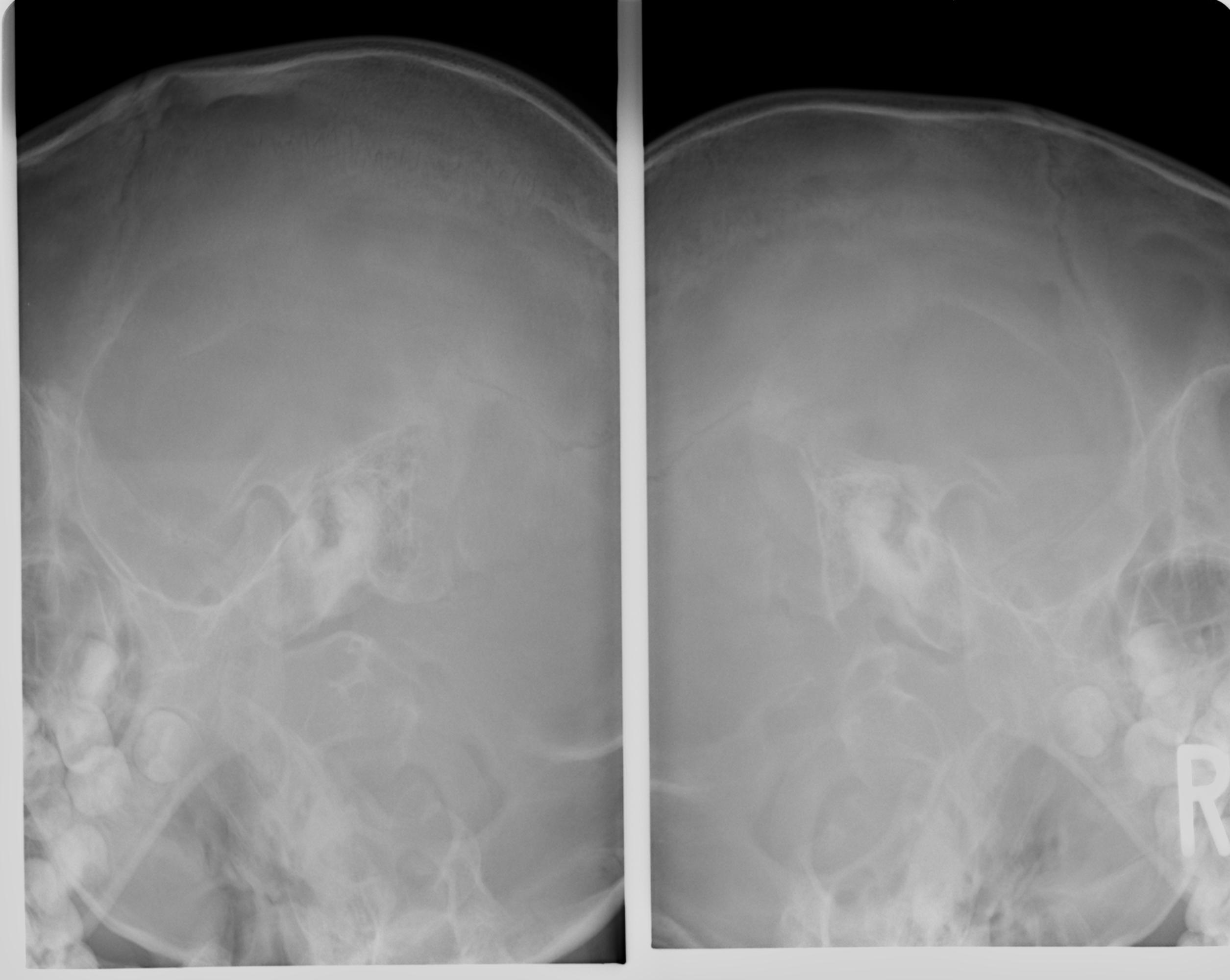 滲出性中耳炎の耳X線