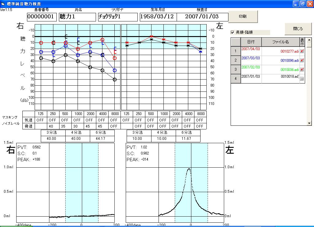 聴力検査結果(オージオグラム)