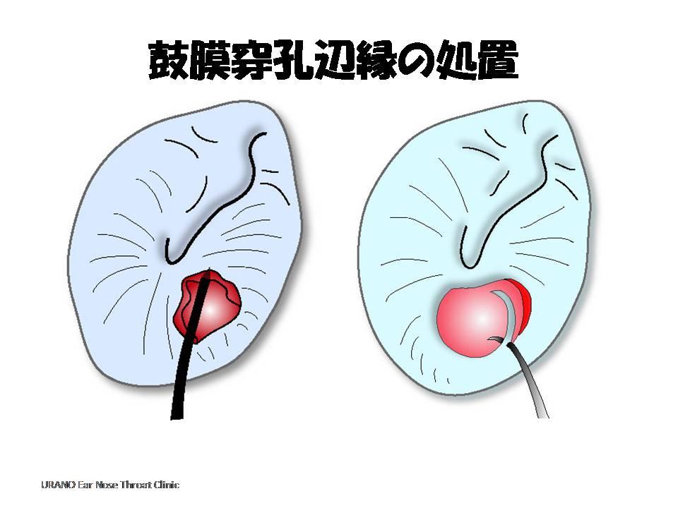 局所麻酔後、鼓膜穿孔辺縁の処理をする