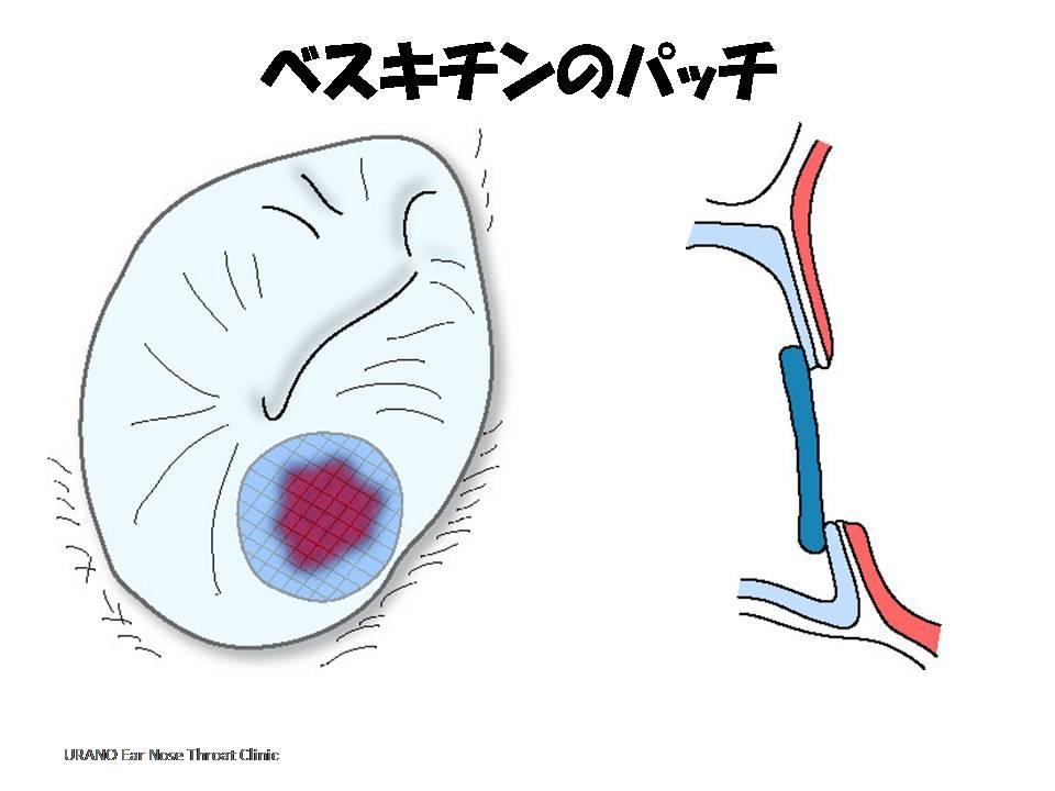 人工鼓膜で穴をカバーする